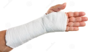 Broken arm in a cast.